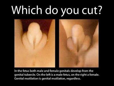 Disabled girl breast examination 2